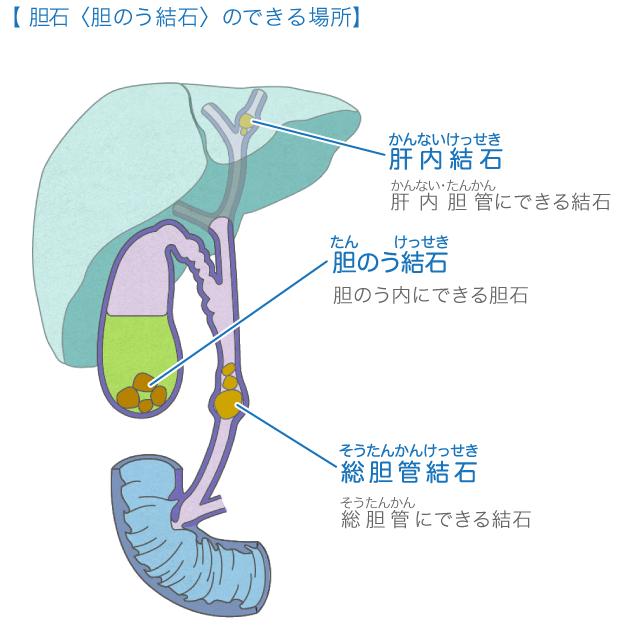 取る 胆嚢 と どうなる を 胆嚢摘出後にはどのような影響がある?術後におこる日常生活への影響